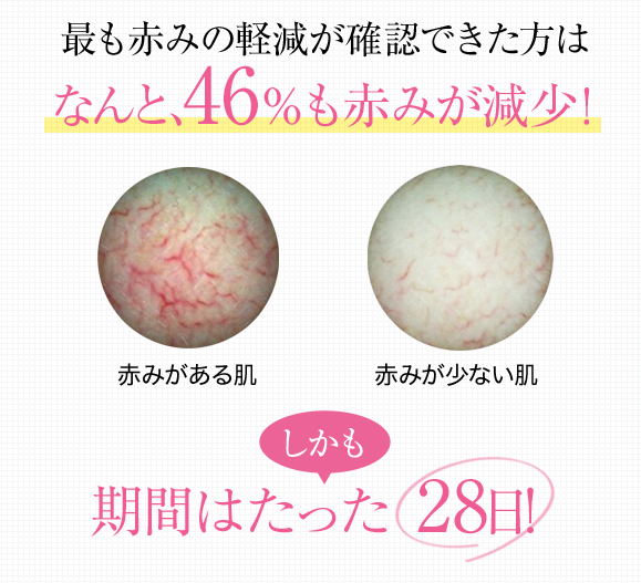 赤ら顔の改善は自宅でもできる?それともレーザー治療でしか治らない?