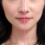 顔の整体・骨格矯正の全貌公開終了ですが、詳細は閲覧できます。