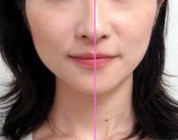 顔の整体・骨格矯正の全貌公開終了しました。