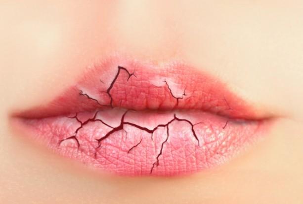 """この季節""""唇""""にもいたわりを"""