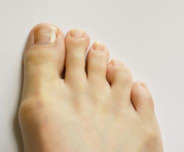 痛んだ足の爪